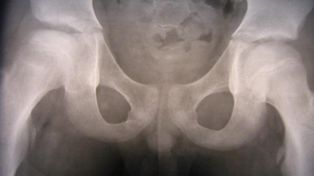 некроз головки тазобедренного сустава от тонзиллита